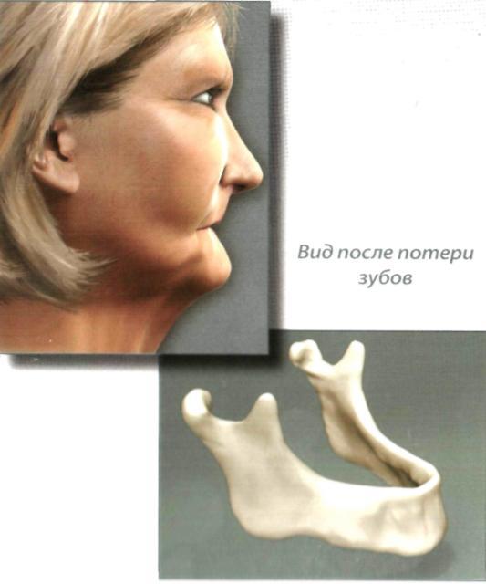 Нарушение жевания при отсутствии зубов